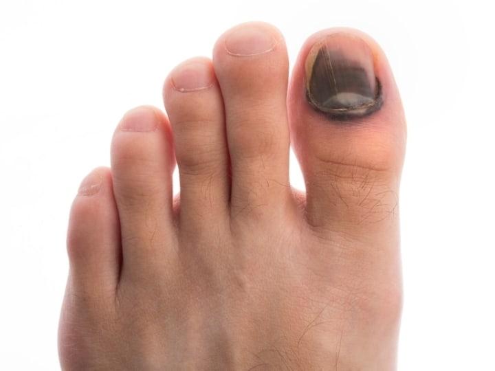 Bad toenail